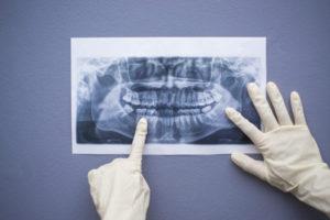 pret radiografie dentara