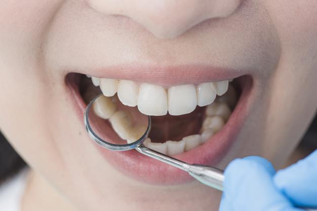 tratament parodontoza pret